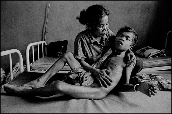 A boy experiencing severe pain from TB meningitis is comforted by his mother at Svay Rieng Provincial Hospital, Cambodia. Family members provide much of the personal care at hospitals in the developing world, courtesy © James Nachtwey, 2008.